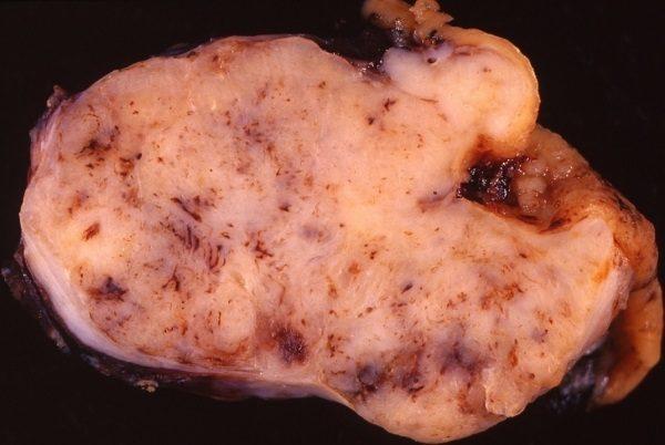 Tumor cancer estomago