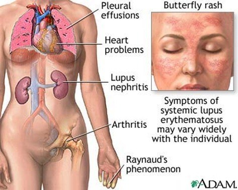 What-Is-Lupus-Disease-1