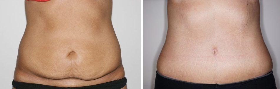 Abdominoplastia para eliminar la flacidez del abdomen for Banos reformados antes y despues