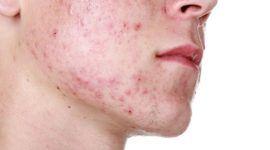Roacutan (Dercutane) una isotretinoína para el tratamiento del acné