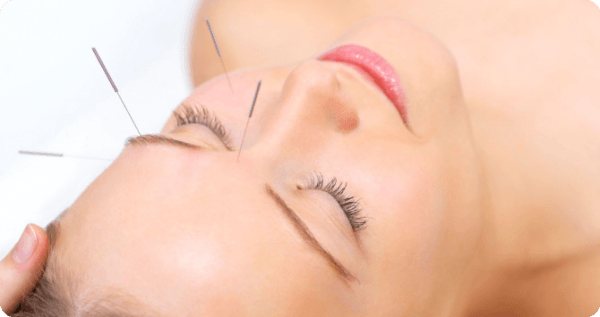 acupuntura-china-que-es