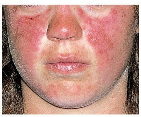 acute_cutaneous_lupus_erythematosus3