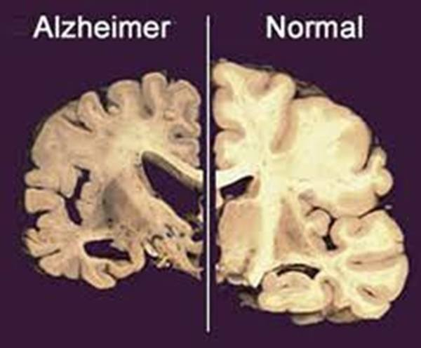 alzheimer y ajedrez cerebro dañado