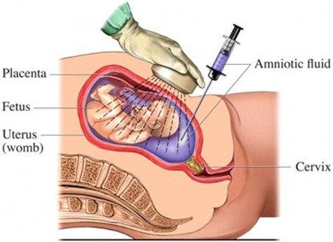 amnio2