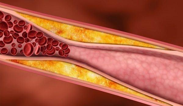 arteriosclerosis que es