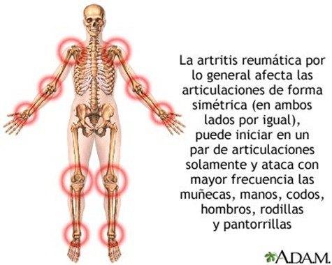 artritis-reumatica2