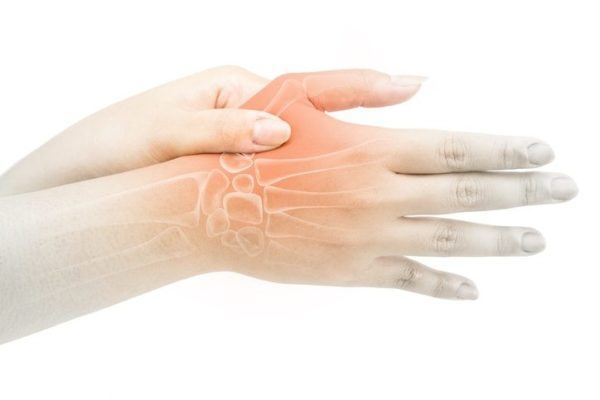Artrosis del pulgar o rizartrosis curas