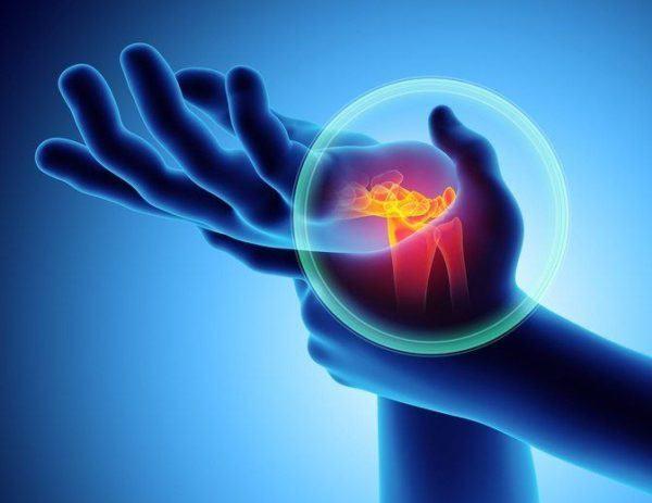 Artrosis del pulgar o rizartrosis rotar