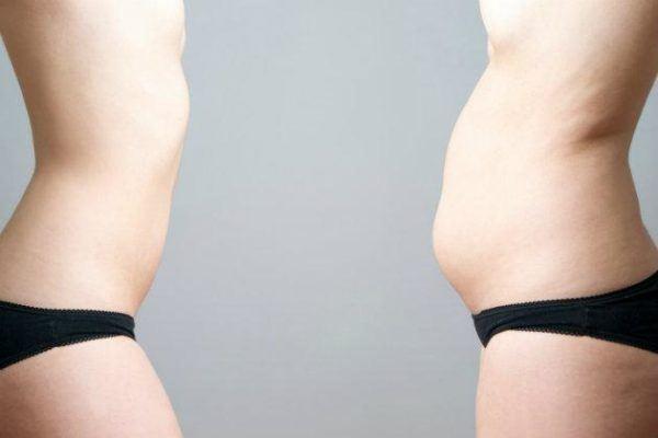 barriga-hinchada-causas-y-tratamiento-resultados