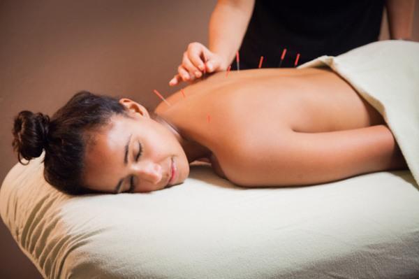 beneficios-acupuntura