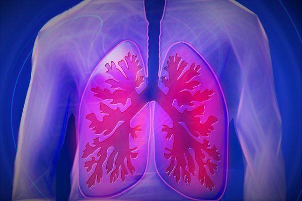 bronquitis-aguda-pulmones