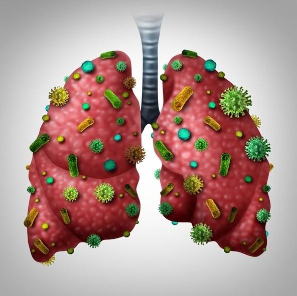 Bronquitis sintomas