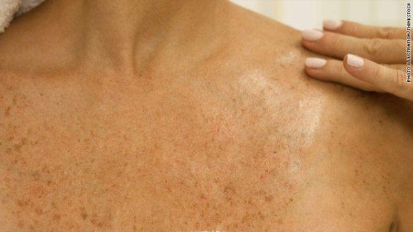cáncer-de-piel-tipo-melanoma