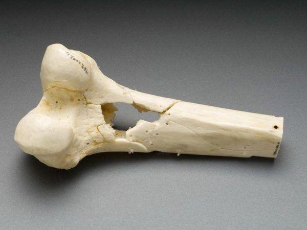 cancer-de-huesos