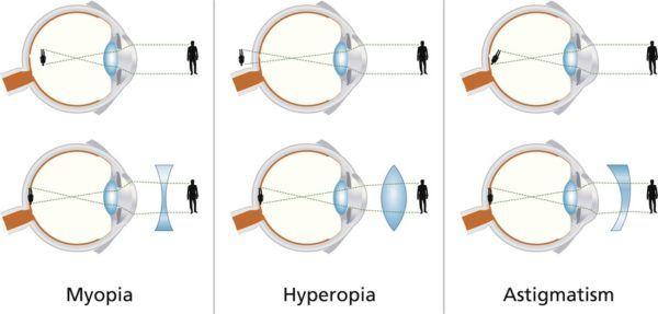 Causas de la prolactina problemas de vision