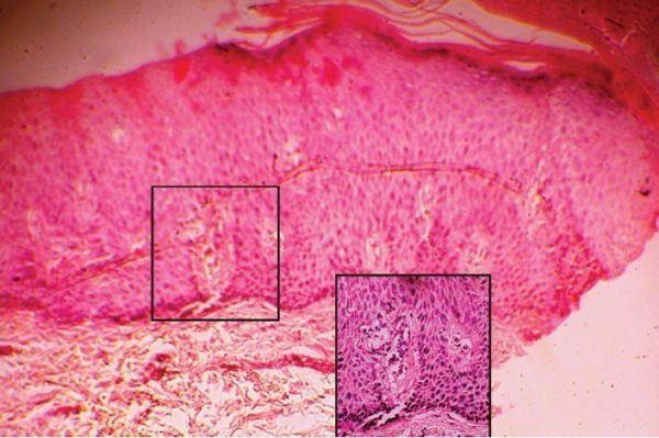 causas-de-la-psoriasis