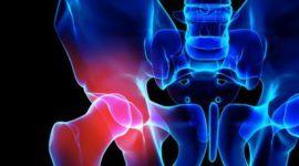 Espondiloartrosis: qué es, causas y tratamiento