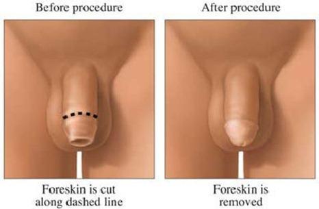 circumcision001008