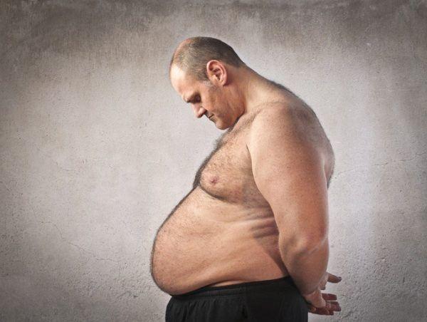 Clasificacion de la dislipemia derivada de otra patologia como la obesidad