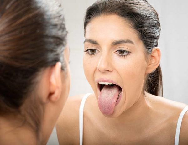 Como prevenir lengua fisurada