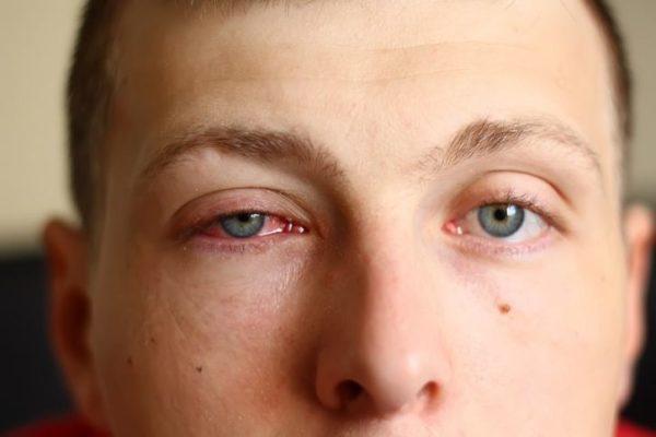 Conjuntivitis sintomas