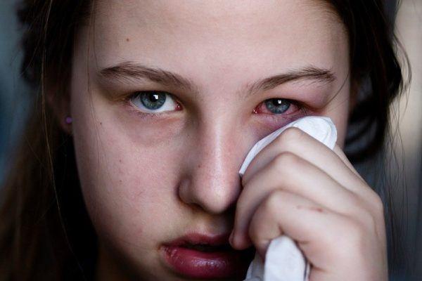 Conjuntivitis sintomas tratamiento