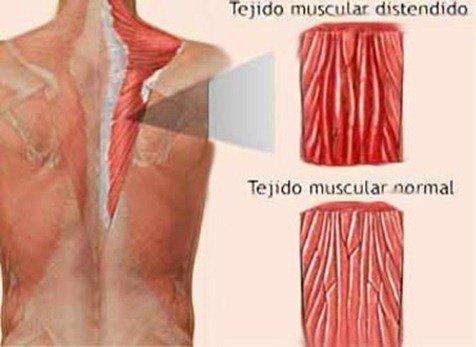 desgarro-muscular