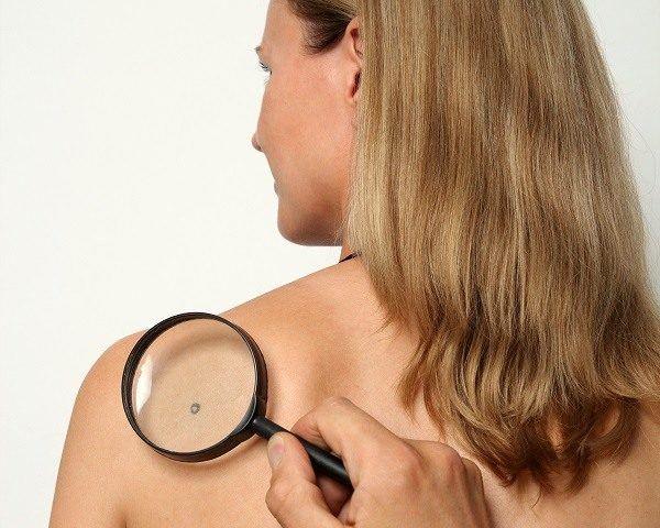 detectar el cancer de piel