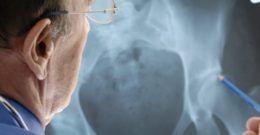 Displasia de cadera: Qué es, síntomas y tratamientos