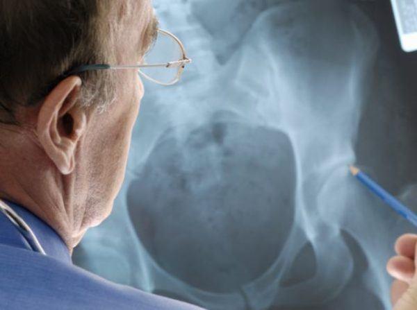 diagnosticar-displasia-de-caderas-adultos