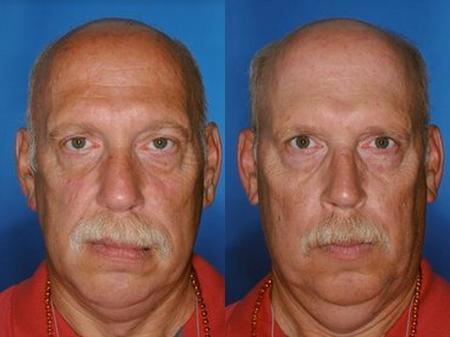 diferencia-entre-personas-fumadoras-y-no-fumadoras-fotos-el-gemelo-de-la-izquierda-fuma