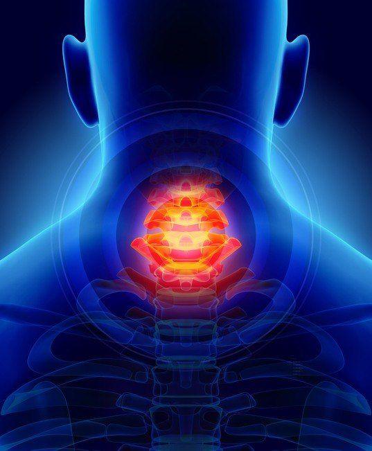 Dolor cuello cervicales