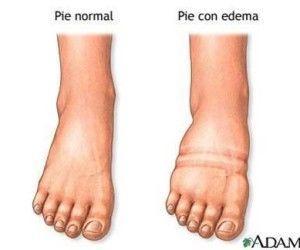 Qué es un Edema: tipos, causas, síntomas y tratamiento