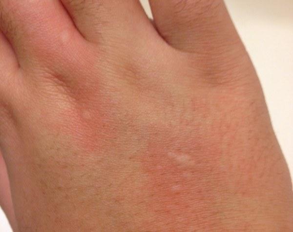 el-estres-produce-picazon-en-la-piel-enfermedad