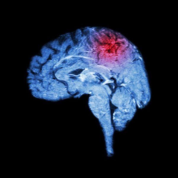 El ictus cerebral