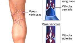 Tipos de vitíligo: síntomas y tratamiento