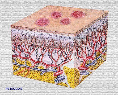 enfermedad-purpura-causas