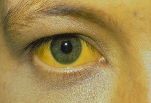 enfermedades-hepaticas-con-transaminasas-altas
