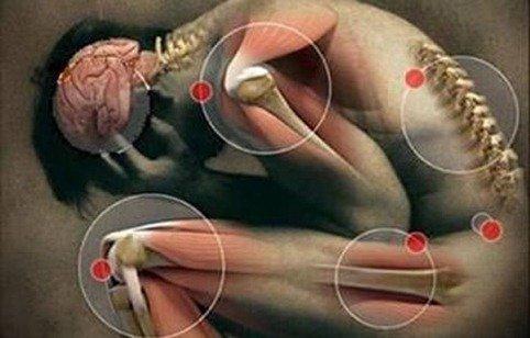 enfermedades reumaticas