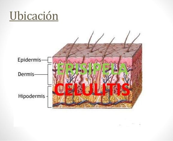 erisipela-sintomas-y-tratamiento-celulitis