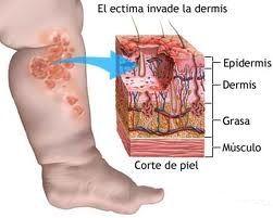 erisipela-sintomas-y-tratamiento-daños