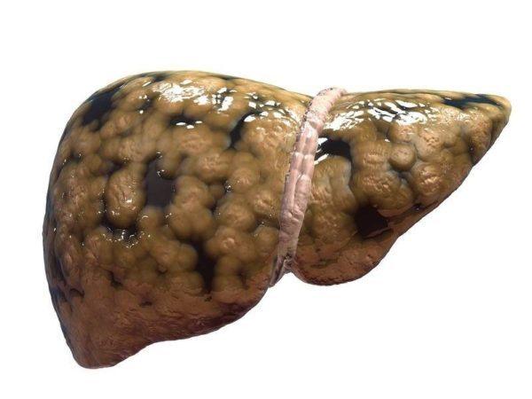 esteatosis-hepatica-sintomas-causas-tratamiento-higado-enfermo