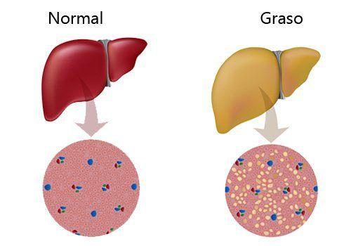 esteatosis-hepatica-sintomas-causas-tratamiento-higado-graso