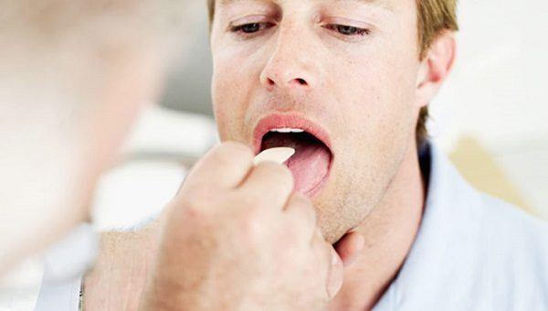 faringitis-tratamiento