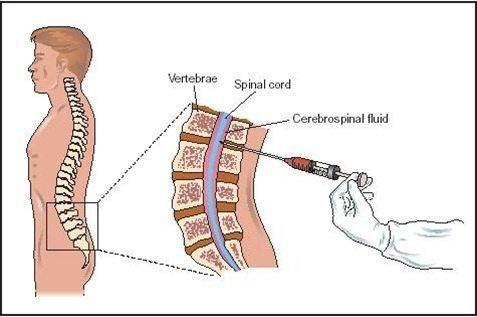 La salud la hernia sheynogo del departamento de la columna vertebral