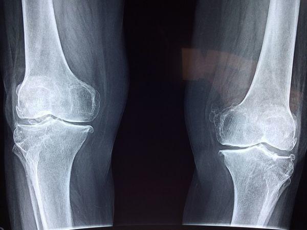 glucosamina-articulaciones-radiografia