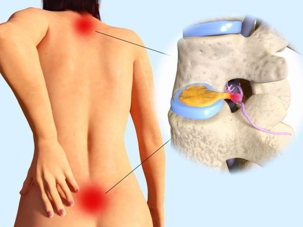 Hernia discal lumbar lupa