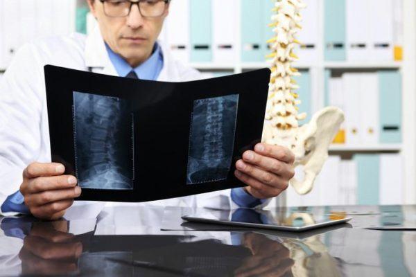 Hernia discal lumbar medico