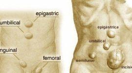 Hernia inguinal: Causas, síntomas y tratamiento