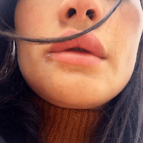 Adesivos De Parede Infantil Super Herois ~ Herpes labial Qué son, cómo se contagia y tratamiento Demedicina com